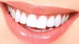 Подводные камни выбора для отбеливания зубов процедуры