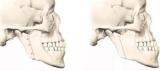 Остеотомия верхней челюсти: фото до и после, отзывы